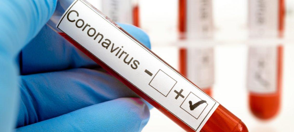 El estudio se propone obtener estimaciones precisas del estado inmunológico de la población, monitorizar la evolución de la epidemia e identificar los factores de riesgo más importantes a los efectos de infestarse con el virus SARS-CoV-2.